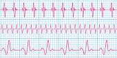 Cardiogram pattern — Stock Vector