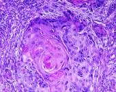 Squamous cell carcinoma of a human — Stock Photo