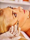 Botox injections under eye — Stock Photo