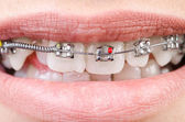 Mouth with brackets braces in medical concept — Stock Photo