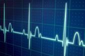 ECG - EKG monitor — Stock Photo