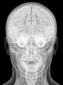 X-ray view of human head isolated on black — Stock Photo