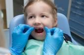 Diş Kliniği muayene küçük kız — Stok fotoğraf