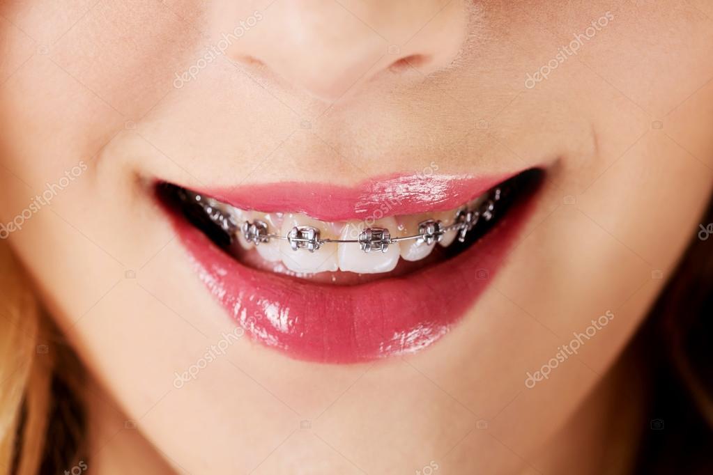 Оголение зубов при брекетах 21