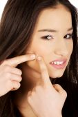 Teenage woman squeezing pimple. — Stock Photo