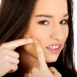 Teenage woman squeezing pimple. — Stock Photo #74762725