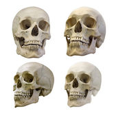 Set of  human skull — Foto de Stock