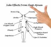Sife Effects From Sleep Apnea — Stock Photo