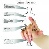 Effects of diabetes — Photo
