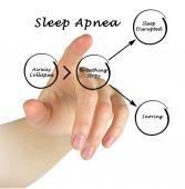 Sleep Apnea — Stock Photo