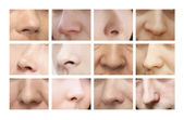 Noses. Various forms of the nose — Stock Photo