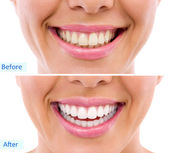 Whitening - bleaching treatment ,woman teeth and smile, before after — Stock Photo