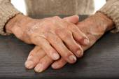 Old hands with artritis — Stock Photo