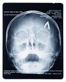 X-ray of a human skull — Stock Photo