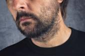 Male facial hair — Stock Photo