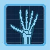 X rays design  — Stock Vector