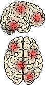 Brain fever — Stock Vector