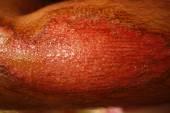 Physical human injury wound medicine healthcare. Extreme macro — Stock Photo