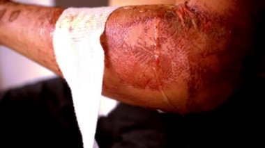 Close up of cleaning wounds and removing the bandage used. Extreme macro video — Stock Video