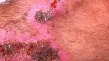 Close up of scars and wounds on hairy male leg. Macro video shift motion — Stock Video