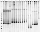 Mutation screening — Stock Photo