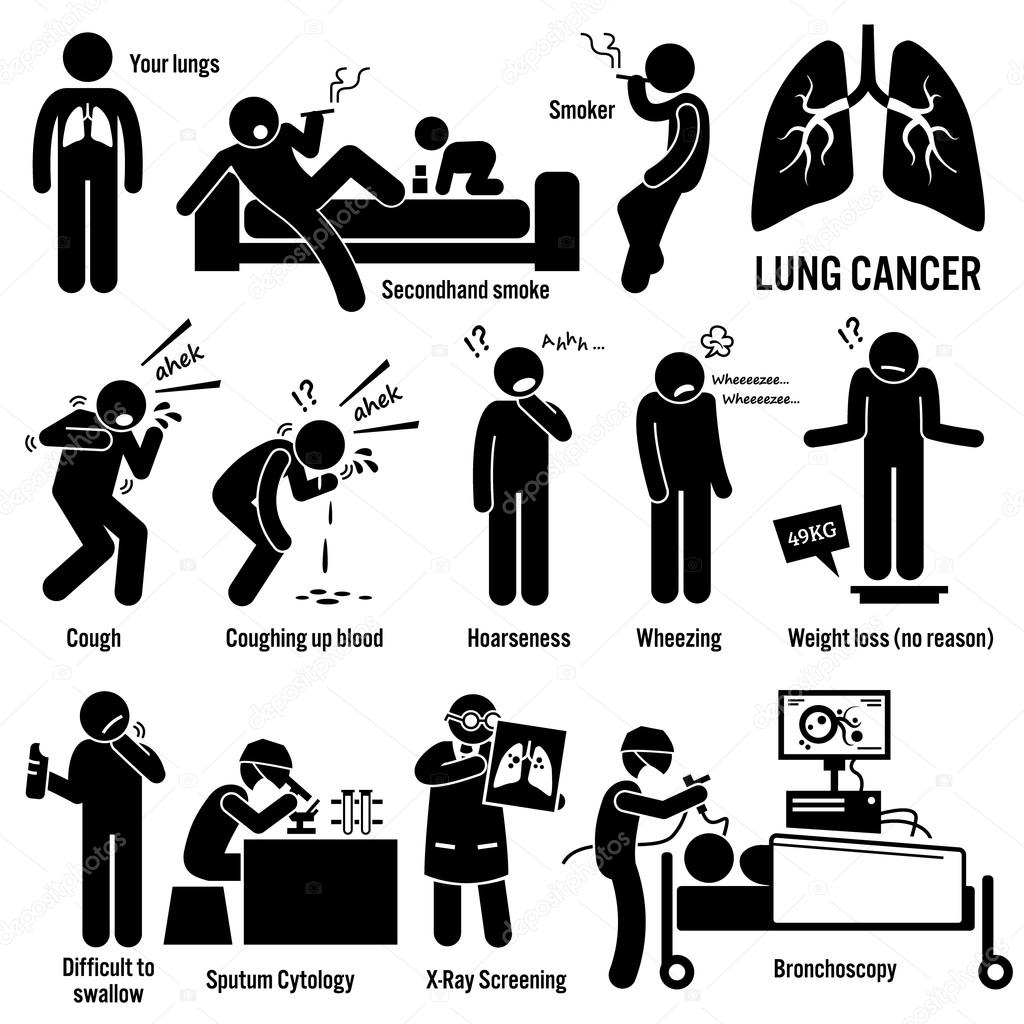 Brain Tumor Cancer Symptoms Causes Risk Factors Diagnosis