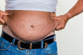Man with overweight — Stockfoto