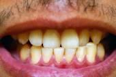 Dirty brown teeth — Stock Photo