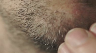 Male Rubs Facial Whiskers Macro — Stock Video