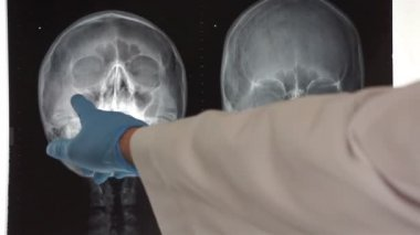 Medical Doctor Pointing to Head X-ray — Stock Video
