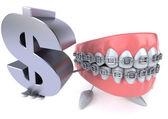 зубы с знак доллара — Стоковое фото