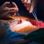 Постер, плакат: Surgery in a modern hospital close up