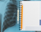 X-ray examination and copy book with pencil — Stock Photo