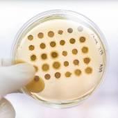 Fungi grown on agar plate. — Stock Photo