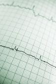 Elektrokardiyogram — Stok fotoğraf