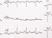Eletrocardiograma, impressão de Ecg, fundo de Ecg — Fotografia Stock