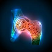 Human hip joint and Osteoporosis — Vector de stock