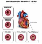 Atherosclerosis — Stock Vector