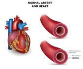 Healthy human elastic artery, detailed illustration — Stock Vector