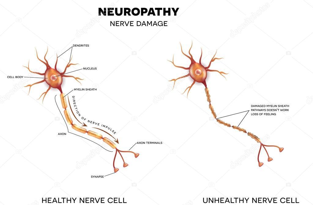 Невротмез