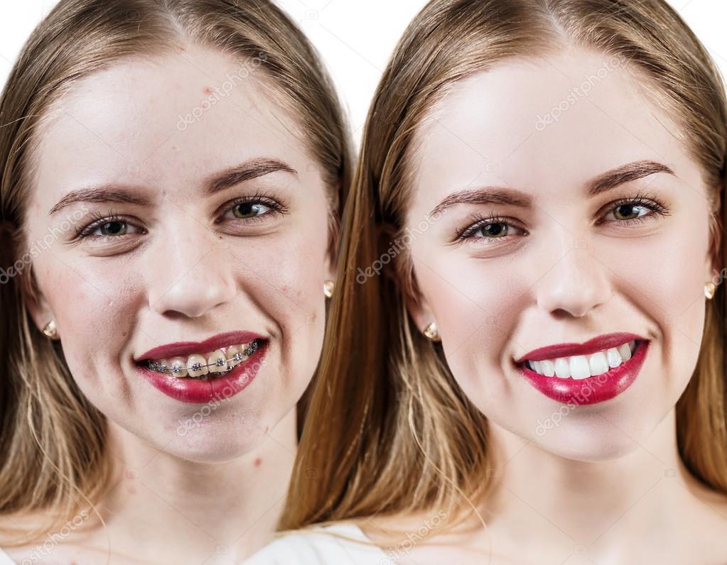 Импланты зубов до брекетов