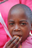 The skin of a child sick with AIDS — Stock Photo