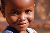 African children suffering from AIDS followed by the non-profit  — Stockfoto
