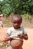 Swollen belly of a little African girl - Pomerini - Tanzania - A — Foto de Stock
