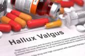 Diagnosis - Hallux Valgus. Medical Concept. — Stock Photo