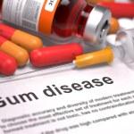 Gum Disease - Medical Concept. — Stock Photo #73516409