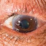 During eye examination — Stock Photo #78220768