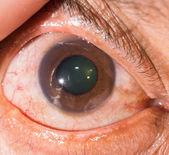 During eye examination — Stock Photo