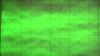 Noisy Signal. — Stok video