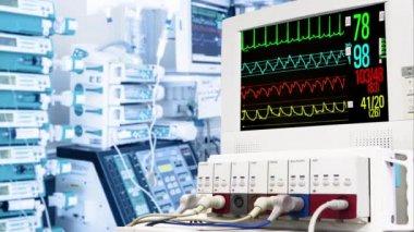 Cardiac monitor in ICU — Stock Video